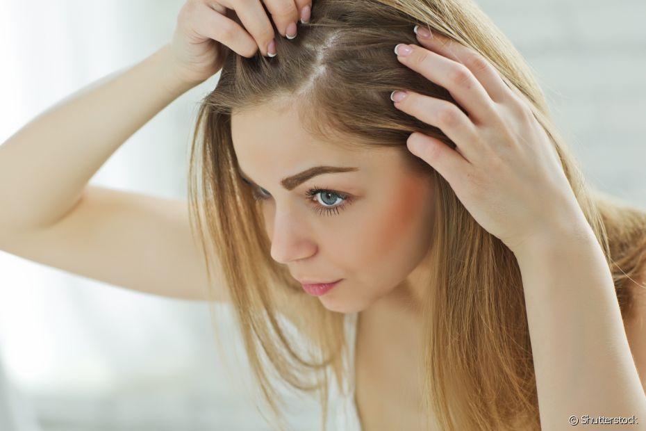 O cabelo branco antes dos 20 anos pode ser indicador de vários fatores relacionados à saúde, entre eles, a má alimentação