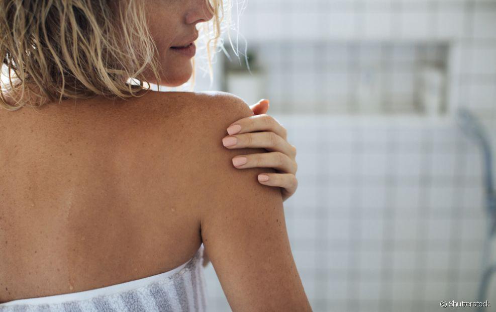 As estrias são causadas pelo rompimento das fibras da pele