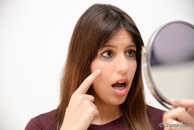 Se o seu caso de olheiras for crônico, pode usar o óleo de coco, mas é preciso consultar um especialista também